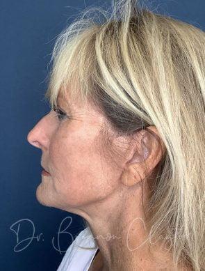 Facelift, Neck Liposuction & BLT Treatment