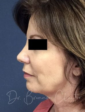 Facelift & Neck Liposuction