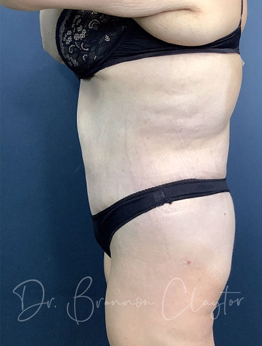 massive-weight-loss-tummy-tuck-48495c-after
