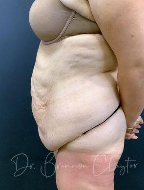 massive-weight-loss-tummy-tuck-48495c-before