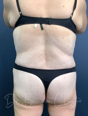 massive-weight-loss-tummy-tuck-48495d-after