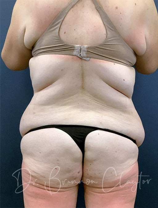 massive-weight-loss-tummy-tuck-48495d-before