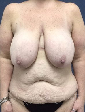 After Weight Loss Surgery