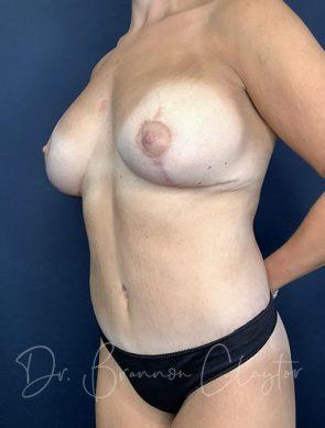 massive-weight-loss-tummy-tuck-breast-lift-implants-48173b-after