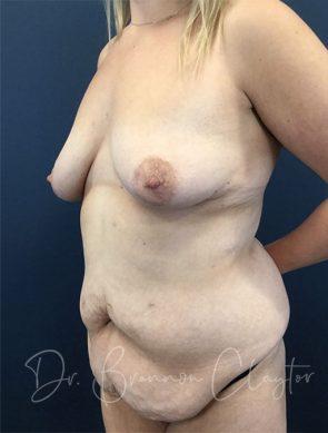 massive-weight-loss-tummy-tuck-breast-lift-implants-48173b-before