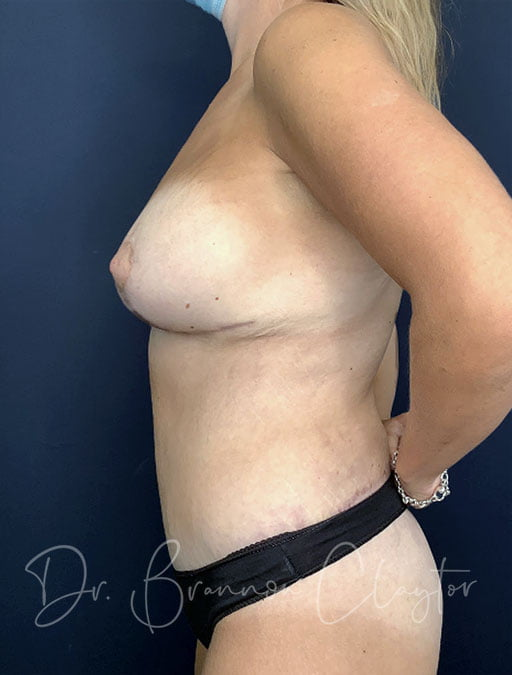 massive-weight-loss-tummy-tuck-breast-lift-implants-48173c-after