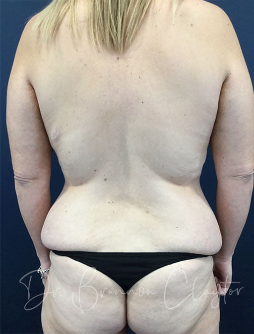 massive-weight-loss-tummy-tuck-breast-lift-implants-48173d-before