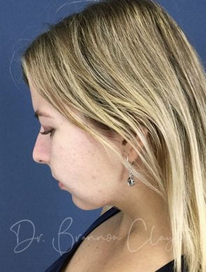 Elevate Neck Lift with Smart Liposuction
