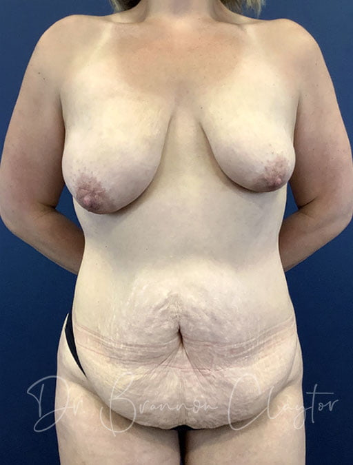 Tummy Tuck & Breast Lift with Implants