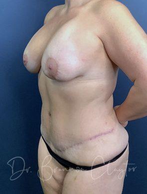 tummy-tuck-breast-lift-implants-47785b-after
