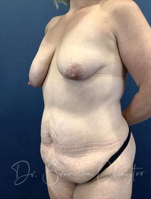 tummy-tuck-breast-lift-implants-47785b-before