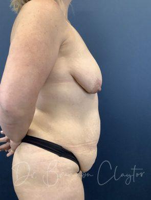 tummy-tuck-breast-lift-implants-47785c-before