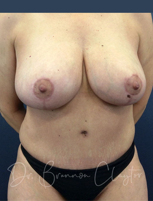 Breast Reduction & Tummy Tuck with Liposuction