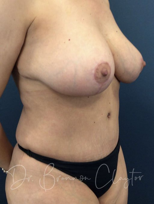 tummy-tuck-breast-reduction-47667b-after