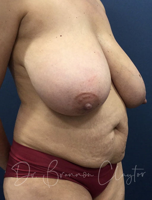 tummy-tuck-breast-reduction-47667b-before