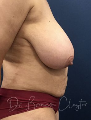 tummy-tuck-breast-reduction-47667c-before