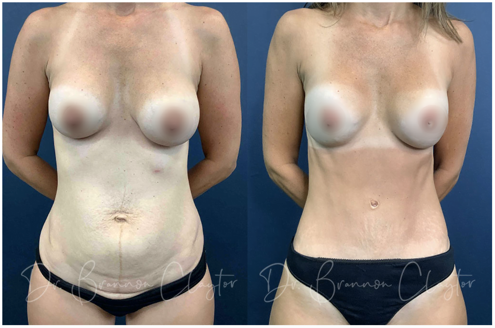 Dr. Claytor Tummy Tuck Patient 27