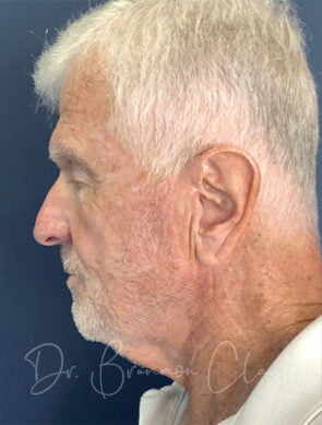 Elevate Neck lift with Concomitant liposuction