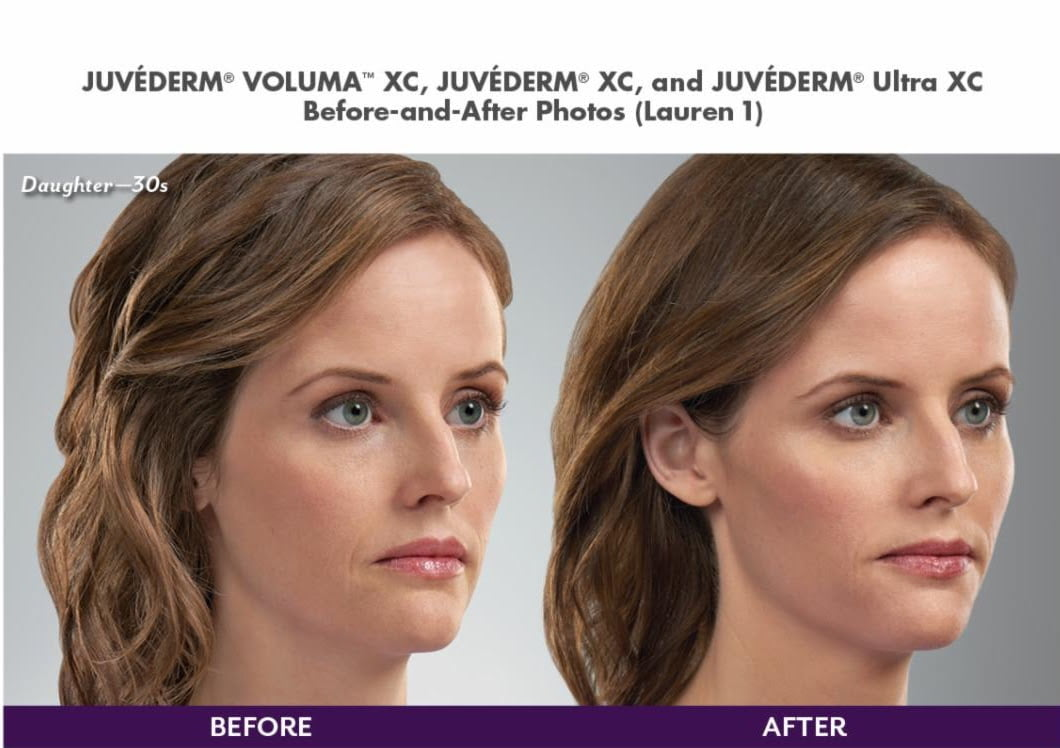 Juverderm Before and After 30s Lauren