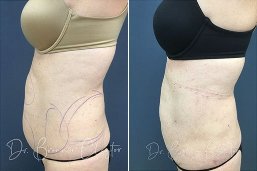 Before and After SmartLipo Patient