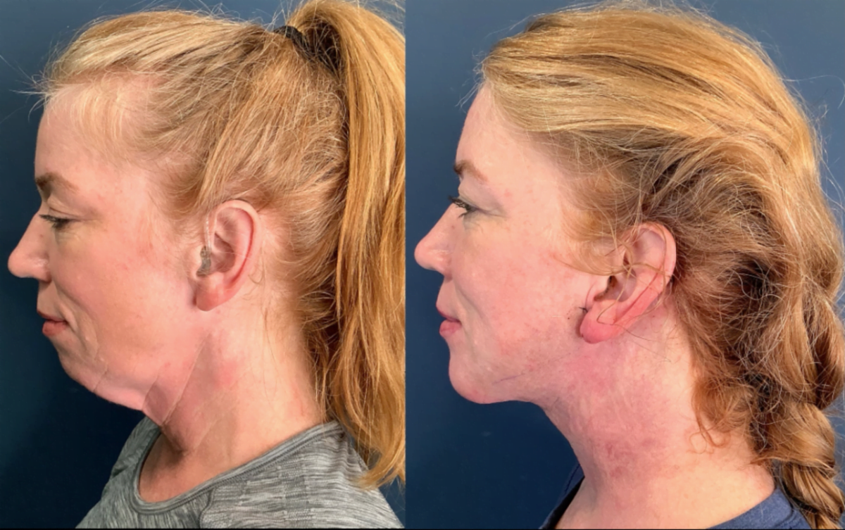 Zoom Lift Patient Before and after