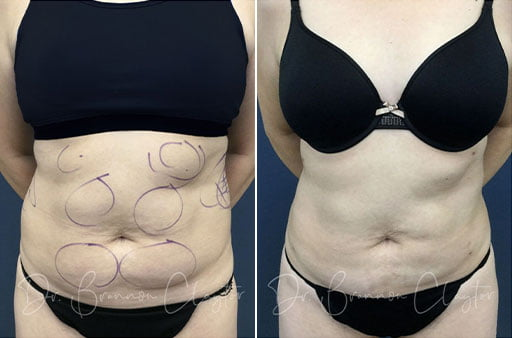 liposuction philadelphia before and after photos
