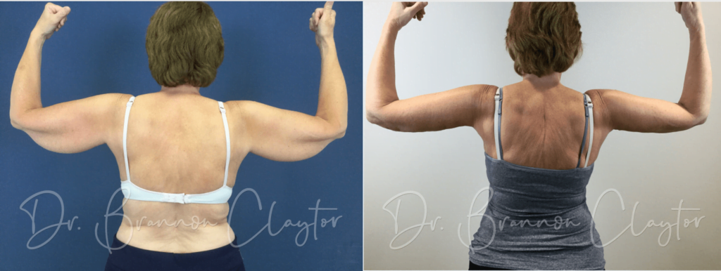 Arm Lift Before and after photo