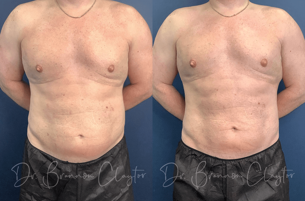 Claytor Noone Actual Patient CoolSculpting Before After 1