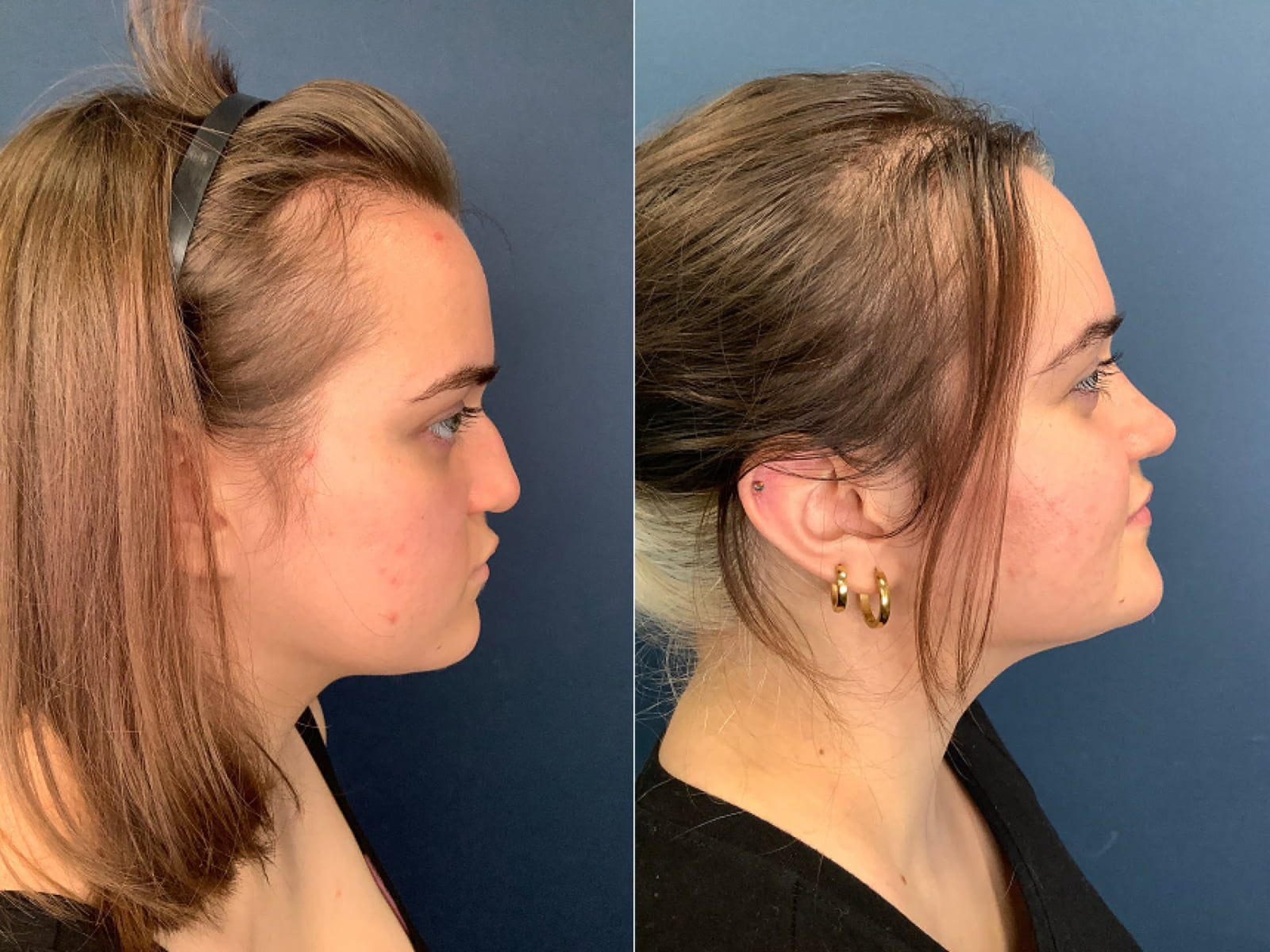 CN Rhinoplasty Before & After