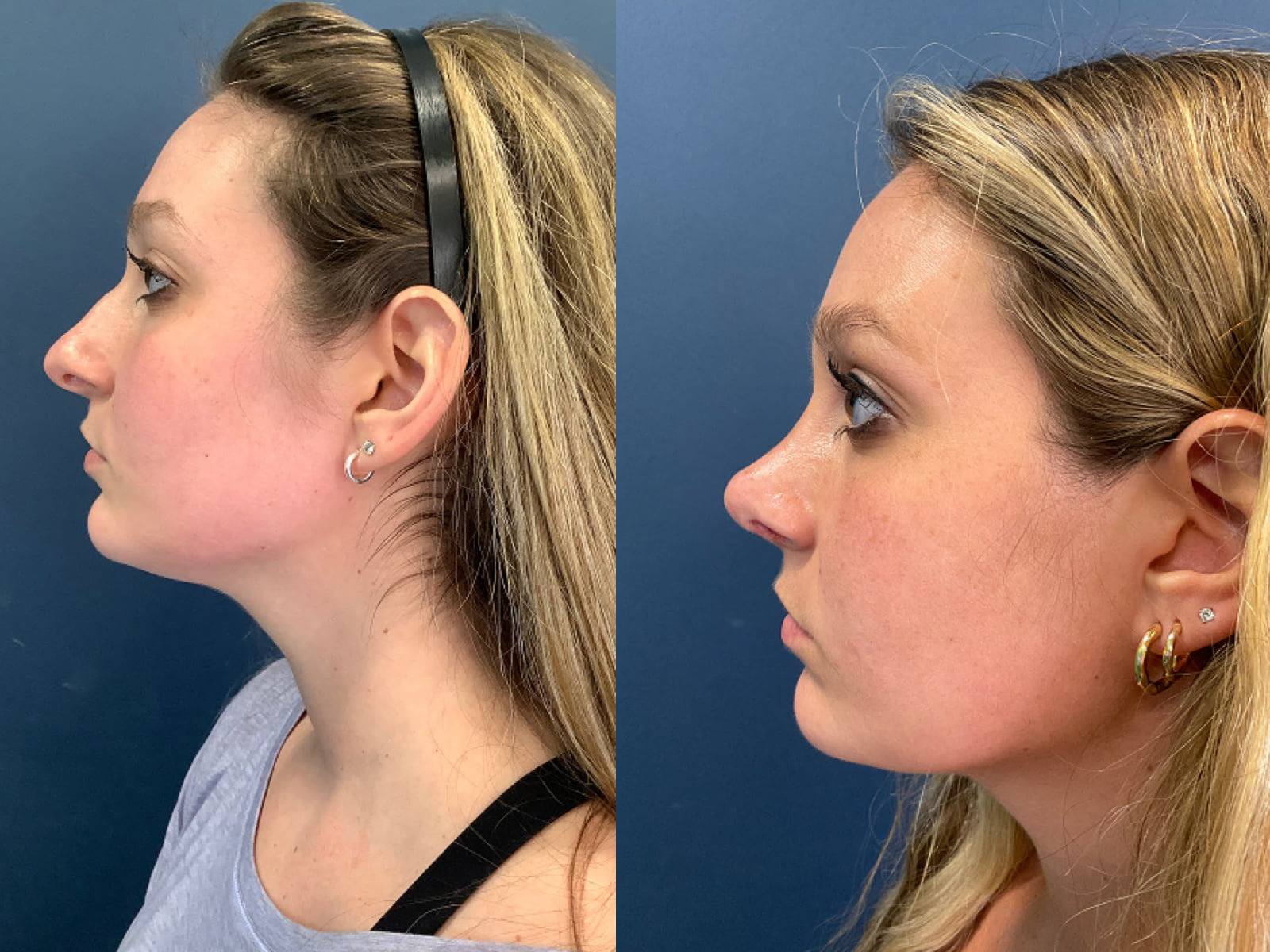 CN Rhinoplasty Before and After