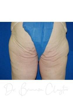 Thighplasty